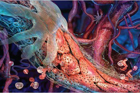 Ангиология. Нейроваскулярные синдромы верхних конечностей.