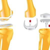 операции эедопротезирования на коленном суставе