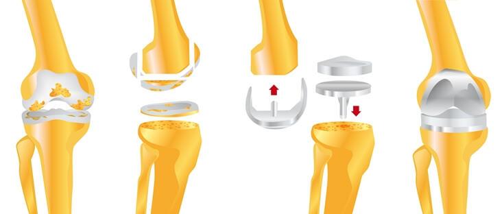 Операция по эндопротезированию коленного сустава. Возможные риски и какова долговечность процедуры?