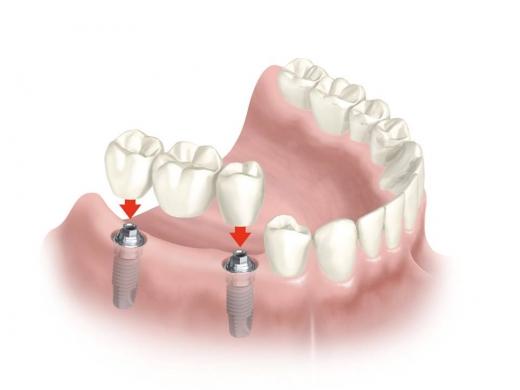 33846 Имплантация зубов – шаг к красивой улыбке